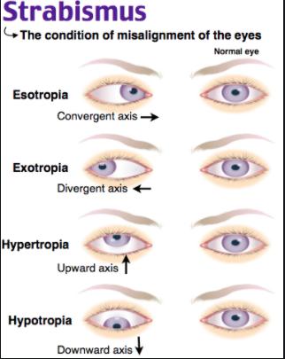 hyperopia strabismus